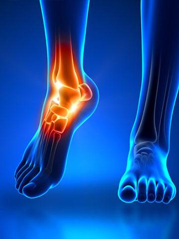 Ayak ve Ayak Bileği Hastalıkları