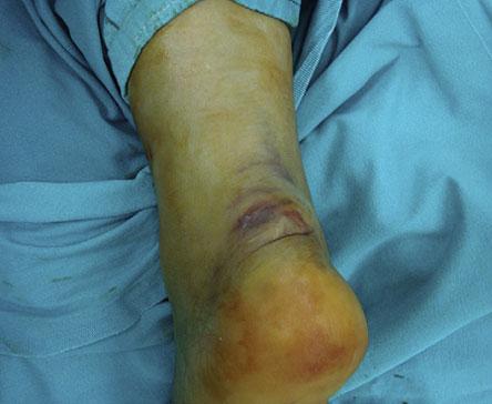 Transverse Incision for Calcaneal Tuberosity Avulsion Fractures. 2012