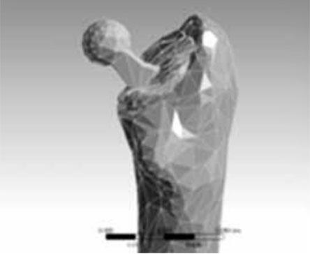 Kalkar defekti olan femur intertrokanterik kırıklarında diafizer çimento desteğinin femur üst uç yük dağılımına etkisinin sonlu element analizi ile tayini, 2013